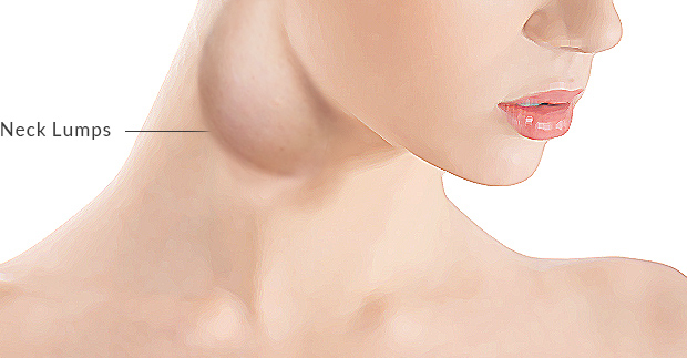 Brandon hitchcock otolaryngology neck lumps surgery tauranga neck lumps surgery publicscrutiny Images