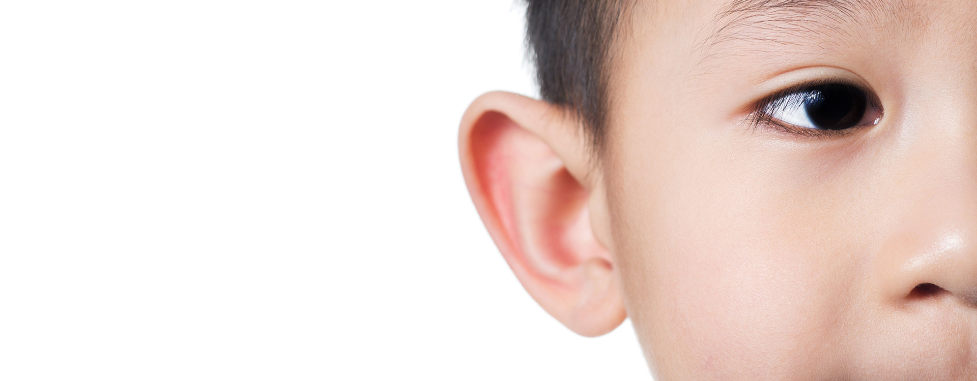 Otoplasty prominent ear surgery Tauranga